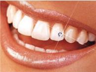 bijuterii_dentare